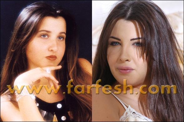 صوره صور فنانات قبل عمليات التجميل