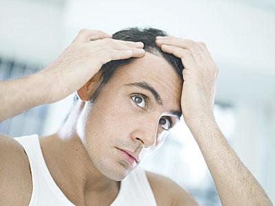 بالصور علاج الثعلبة في الشعر والتخلص منها نهائيا 16f9c186f841fa8b281ae73ba6beca2c