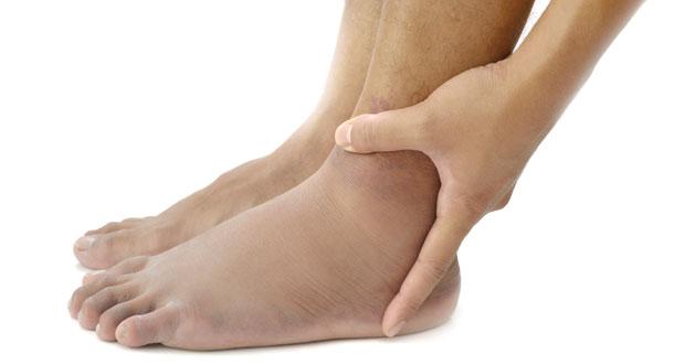 بالصور اعراض وعلاج املاح القدمين 253990ed259f73291bd65e744b3a50b3