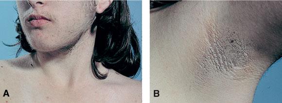 بالصور علاج تساقط الشعر الناتج عن تكيسات المبايض 2795d42153be9e43d7a793462af933b0