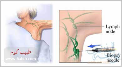 صوره علاج التهاب الغدد اللمفاوية تحت الابط