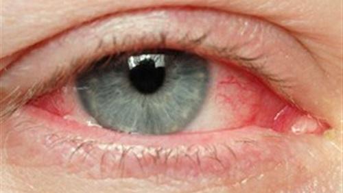 بالصور تقرير عن قرحة العين اسبابه وعلاجها 27dde56ddd190deb8149f105eeb08ba8