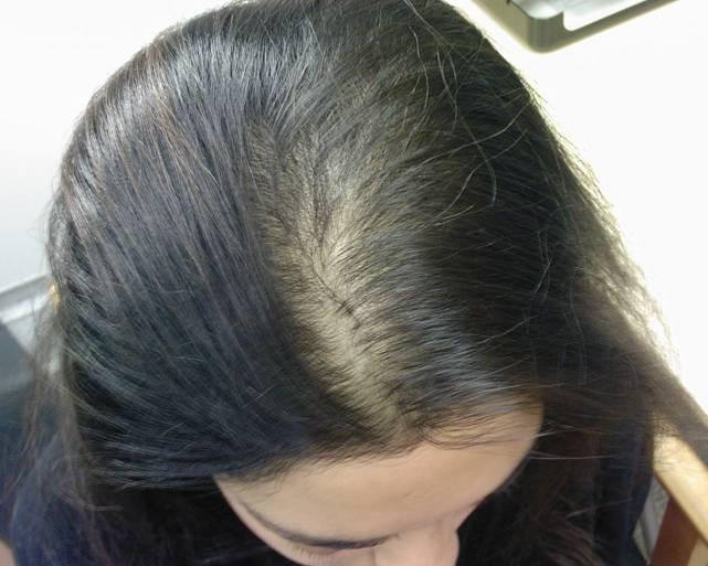 صوره علاج الشعر الخفيف فعال