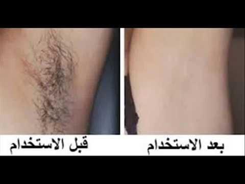 بالصور ازاله الشعر من الاماكن الحساسه  بالحلاوةو الشمع 57ce5df95c8771ef7bd104fb81f922d9