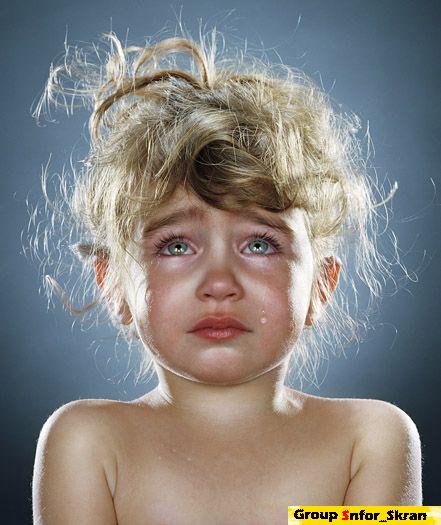 صور تسلخات الاطفال وطرق التخلص منها