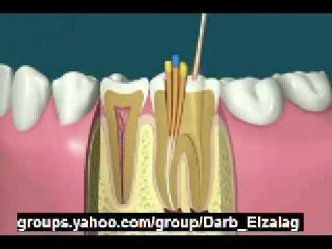 صوره الام اعصاب الاسنان وعلاجها
