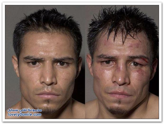 بالصور صور اشهر ملاكمين من حول العالم a7bb8a2366b23a5de6164a2ceb05820c