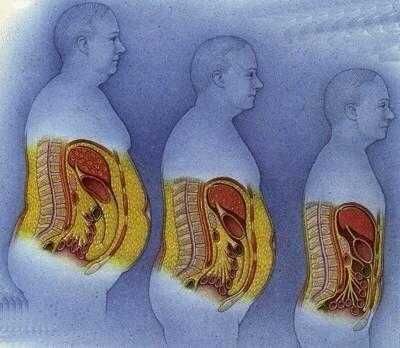 صوره طرق علاج الدهون مجرب