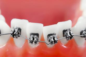 بالصور معلومات مفيده عن الاسنان d68aec78a1d810531e7b6a62c06b3387