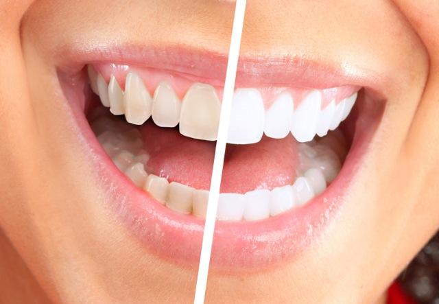 بالصور تبييض الاسنان في يوم واحد eb23af462a4cc222e84269a110eb049d