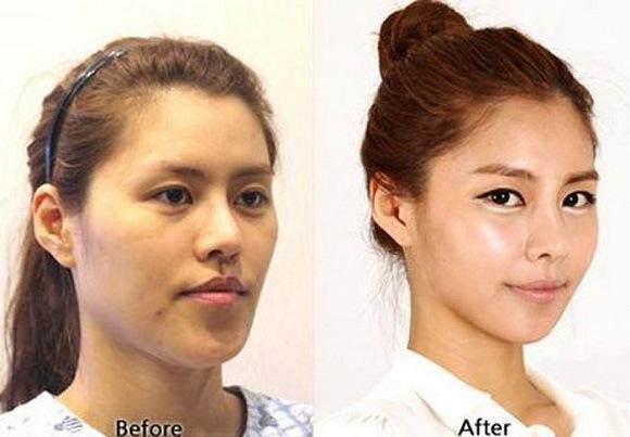 صوره الممثلات الكوريات قبل وبعد عمليات التجميل