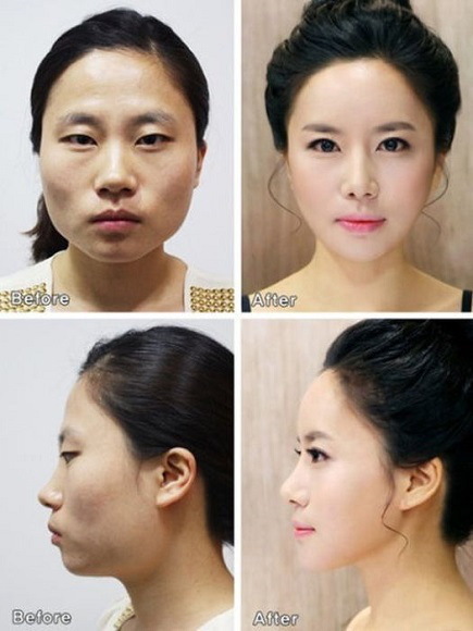 korean before & after 3