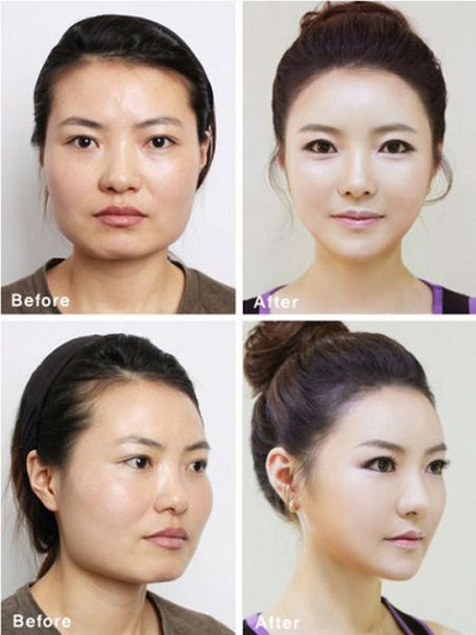 korean before & after 2