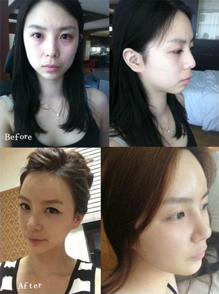 korean before & after 4
