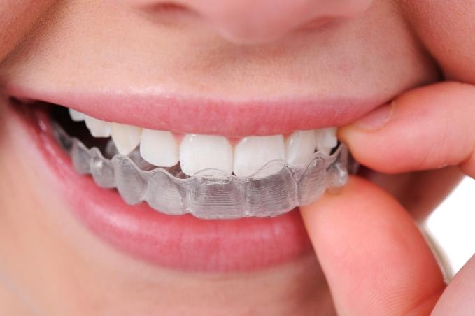 صور تقويم الاسنان في سن الثلاثين