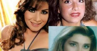 صوره مغنيات قبل وبعد عمليات التجميل