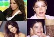 صور صور فنانات قبل عمليات التجميل