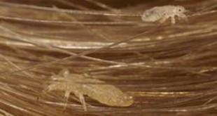 صور رؤية القمل في الشعر في المنام