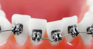 بالصور معلومات مفيده عن الاسنان معلومات عن تقويم الأسنان 310x165