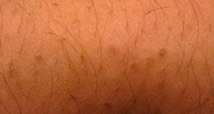 صوره حل مشكلة الشعر تحت الجلد