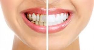 صوره كيفية علاجه جير الاسنان