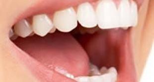 بالصور علاج رائحة الفم الكريهة بطريقة فعالة 742bde0eca5ace6b239c44d745403a1c 310x165