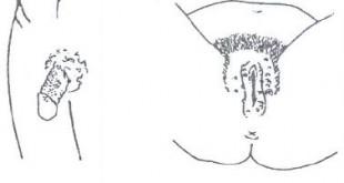 صور الامراض الجلدية التي تصيب الجهاز التناسلي الذكري