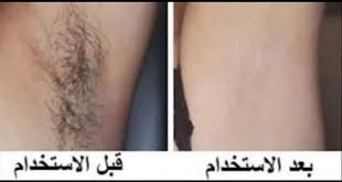صوره ازاله الشعر من الاماكن الحساسه  بالحلاوةو الشمع