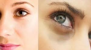 صور وصفة لازالة الهالات السوداء تحت العين