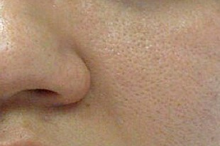 صوره ماسكات لتسكير مسامات الوجه