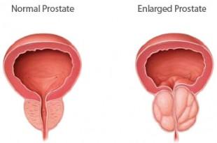 صوره مرض بروستات وكيف يمكن الوقاية منها