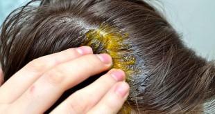 بالصور فائدة الزنجبيل للشعر واهميته فرك الثوم على الشعر 310x165