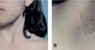 صوره علاج تساقط الشعر الناتج عن تكيسات المبايض