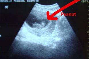 صوره شكل الجنين في الشهر الاول
