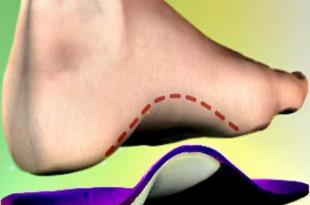 صورة علاج فعال للاقدام المسطحة , اسهل حل للفلات فوت
