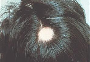 صوره مرض الثعلبة عند الاطفال