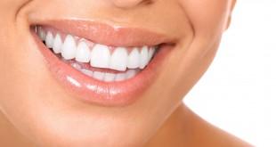 صور تغشية الاسنان بطرق امنة