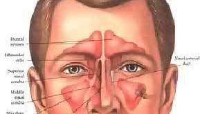 بالصور حساسية الجيوب الانفية وعلاجها بالاعشاب aadd2 a9995eeb7a 289x165