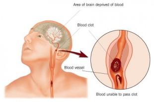 صوره الجلطة الدماغية اسبابها وعلاجها