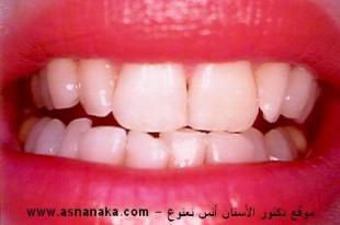 صوره معلومات عن الاسنان الاصطناعية الثابتة