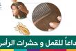 بالصور حشرات الراس وعلاجها قل وداعا للقمل و حشرات الراس dailymedicalinfo head lice1 110x75