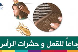 صورة حشرات الراس وعلاجها قل وداعا للقمل و حشرات الراس , اقضي على القمل والسبان في شعر بنتك او ابنك بسهولة