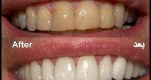 صوره كيف ازيل اصفرار الاسنان