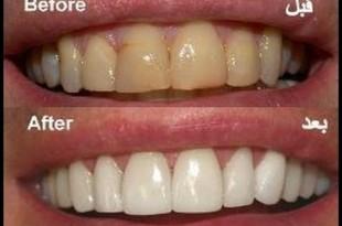 صورة كيف ازيل اصفرار الاسنان , شيء يحرج البنت بشدة