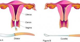 صوره عملية توسيع عنق الرحم