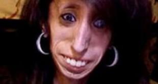 بالصور صورة ابشع امراة اقبح امراة في العالم امراة من جلد وعظم حسناء imgid124684 310x165