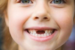 صوره الاهمية في خلع اسنان الاطفال