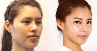 صورة الممثلات الكوريات قبل وبعد عمليات التجميل