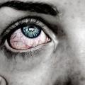 ألم-العين