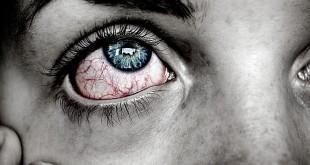 صور علاج حرقان العين واحمرارها